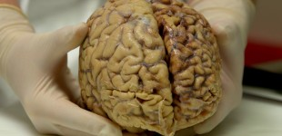 The impact of brain research on contact sports